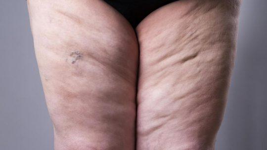 Obrzęk lipidowy – przypadłość dotykająca kobiety