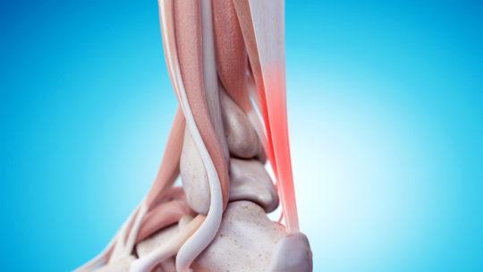 Czy zastrzyki z kortyzonu mogą pomóc w leczeniu Achillesa?